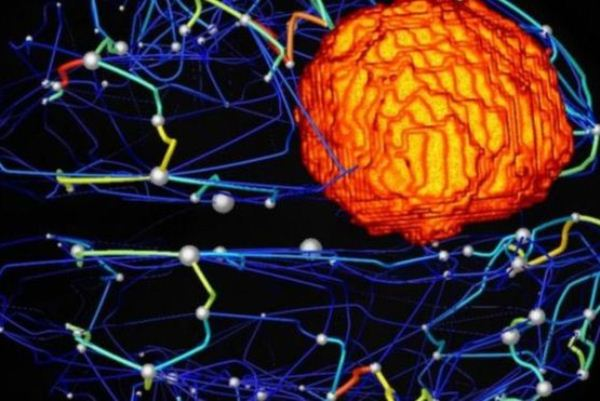 يأمل الأطباء في جمع بيانات التصوير العصبي ونماذج الدماغ الافتراضية لتحسين الخطط الجراحية ونتائج علاج أورام الدماغ في المستقبل.