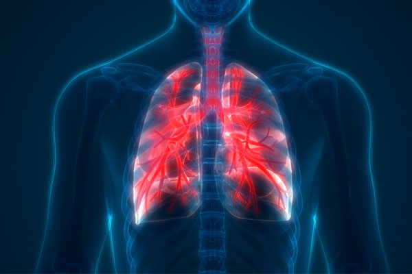 الكشف المبكر عن سرطان الرئة