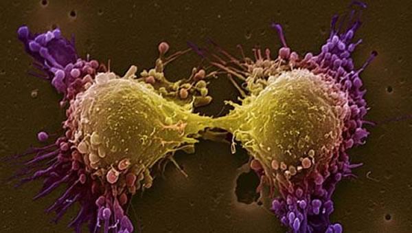 خلية سرطان البروستاتا