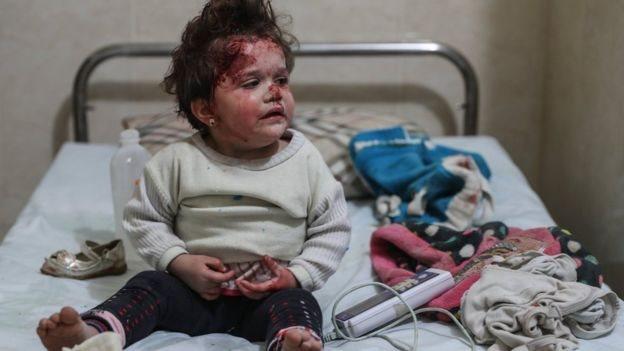 لأكثر من مئة طفل بحاجة لرعاية طبية عاجلة في الغوطة الشرقية