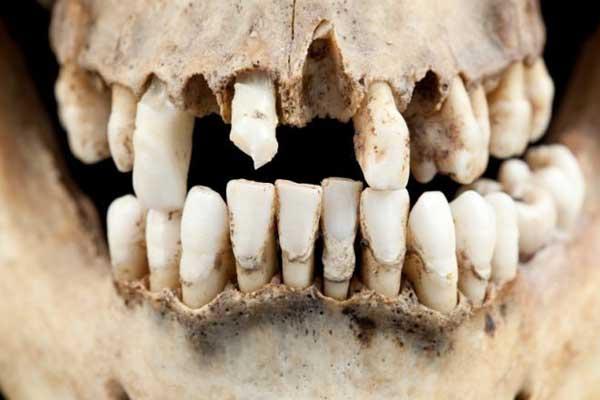 منذ الإنسان الأول... آفات الأسنان هي نفسها