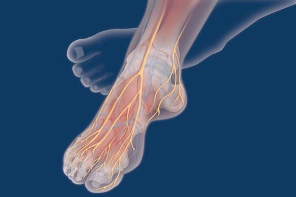 نسبة الجهل تجاه سكري القدم متقاربة لدى مرضى وأطباء