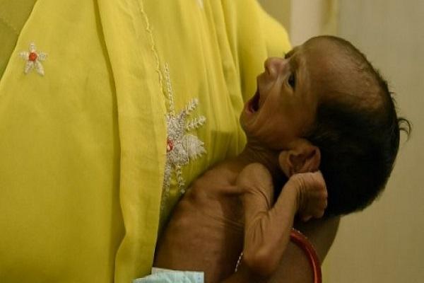 رضيع هندي يعاني من سوء التغذية تحمله ممرضة في مستشفى في سنغاريدي بولاية تيلنغانا