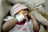 عدد الوفيات بسبب الكوليرا في اليمن يتجاوز الـ 1100