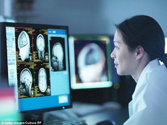 الذكاء الاصطناعي يكتشف الزهايمر 10 سنوات قبل الاطباء
