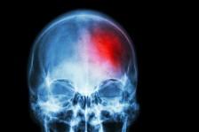 بخاخ أنف يعد بحياة أفضل للناجين من السكتة الدماغية