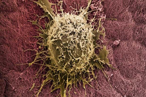 تراكم الخلايا الجذعية في نخاع العظم يعتبر قاتلًا