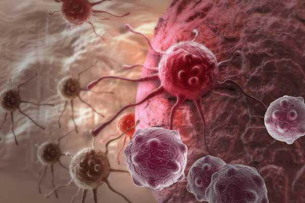 تصاعد مطرد في عدد إصابات سرطان البروستات