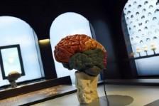 طريقة جديدة لاستهداف الجسيمات السامة التي تدمر الخلايا العصبية السليمة في الدماغ
