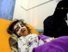 الإمارات ترسل مصابين يمنيين للعلاج في الهند