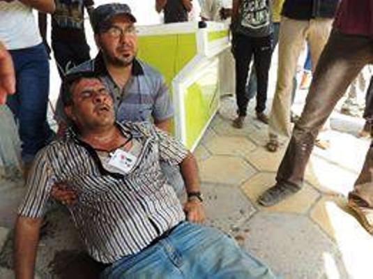صحافي عراقي تعرض لاعتداء من القوات الامنية