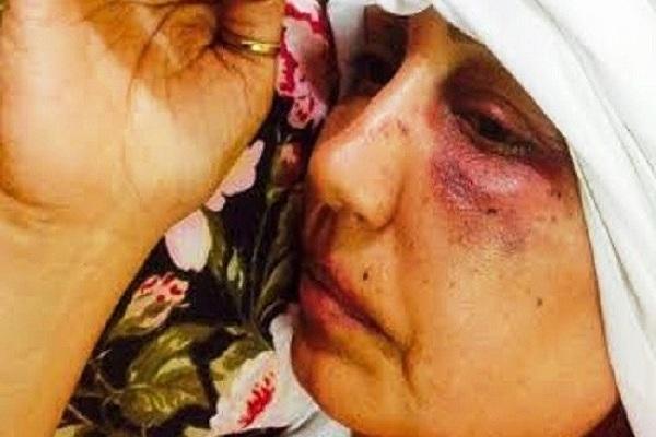 الصحافية العراقية المعتدى عليها زينب الساعدي