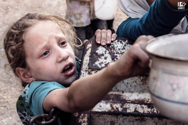 فتاة سورية من ضحايا حصار بلدة مضايا