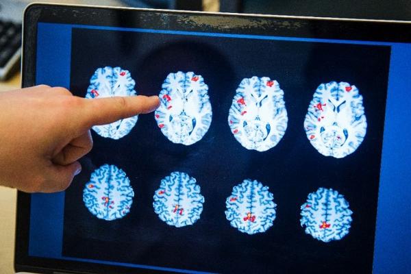 تطوير جهاز قادر على ضخ المعلومات الى الدماغ مباشرة