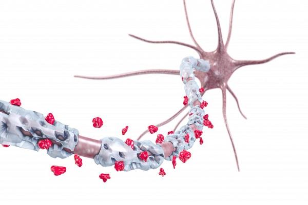 اكتشاف يفتح آفاقاً لترميم الأعصاب المقطوعة والمتضررة