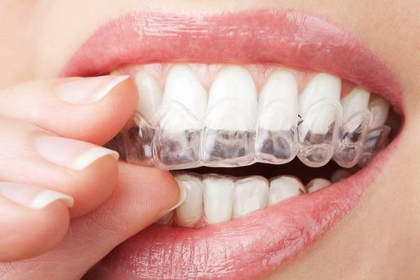 البوتوكس يستخدم في معالجة صرير الأسنان