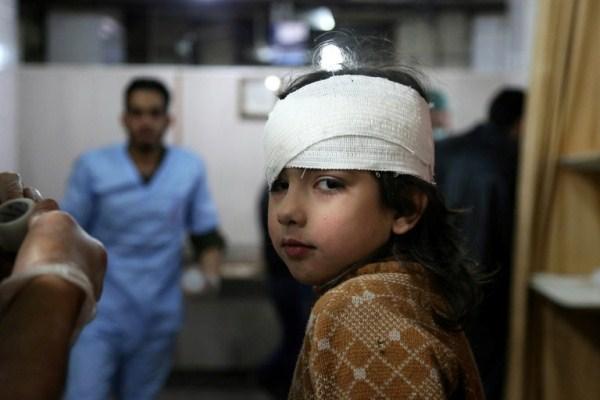 طفلة سورية جريحة تتلقى العلاج في الغوطة الشرقية
