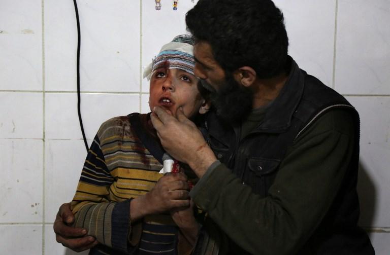 18 حالة اختناق في الغوطة الشرقية بعد قصف للنظام حسب معاينة المرصد السوري لحقوق الإنسان