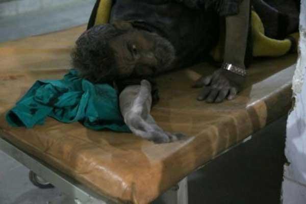 جريح سوري يتلقى العلاج في مستشفى ميداني إثر قصف شنه النظام على كفربطنا في الغوطة الشرقية يوم 13 مارس 2018