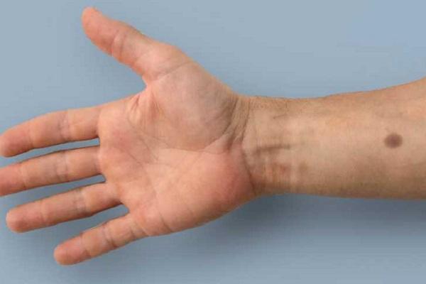 شامة اصطناعية انذار مبكر من السرطانات