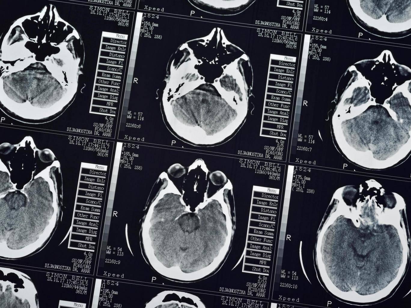 تشفير الادراكات الحسية في قشرة دماغ الانسان يتيح للأعمى أن يرى والمشلول أن يشعر باللمس