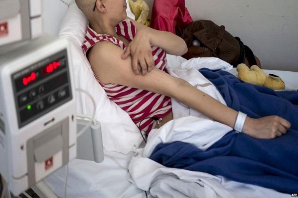 علماء: فيروس شلل الأطفال يعالج سرطان الدماغ