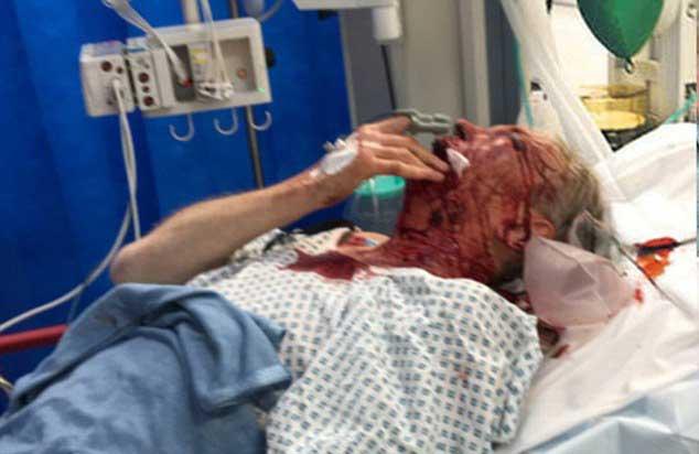 صورة نشرتها زوجة السير كريستوفر له وهو في المستشفى