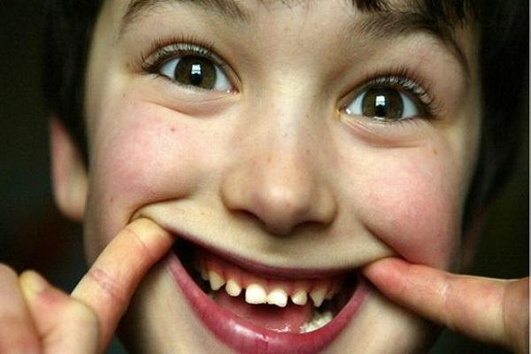 40 في المئة من الأطفال في انجلترا لا يزورون طبيب الأسنان