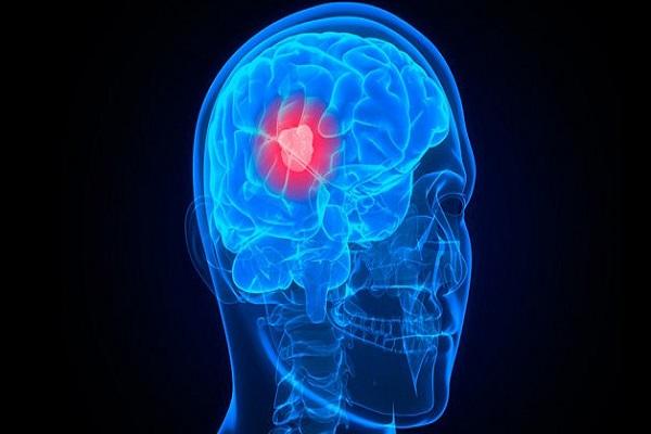 علماء ألمان يطورون لقاحاً ضد سرطان الدماغ الخبيث