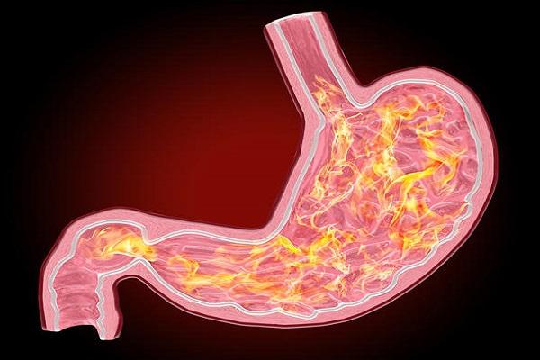 أدوية حرقة المعدة قد تزيد خطر الخرف وأمراض القلب والكلى