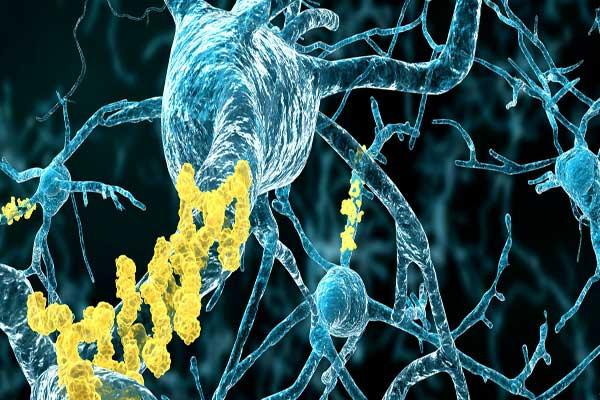 صورة مجهرية تظهر تراكم البيتا أميلويد (باللون الأصفر) في الخلايا العصبية