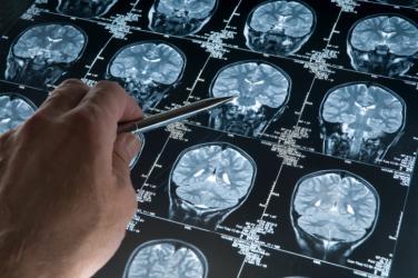 العلماء تمكنوا من وقف تزويد الخلايا السرطانية في الدماغ بالطاقة باستعمال مركب كيميائي