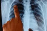 عقار جديد يخفض وفيات سرطان الرئة الى الثلث