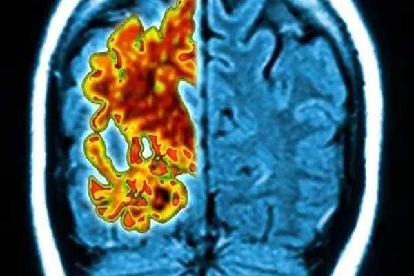 دماغ ألزهايمر (يسار) مقارنة مع الدماغ السليم