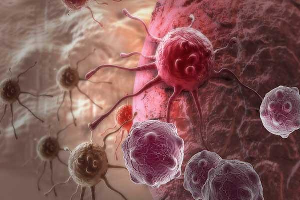 الضغط النفسي مدخل إلى إصابات سرطانية