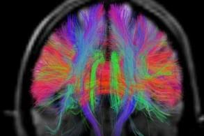 تضعف إشارات الدماغ عندما تضعف بعض الخلايا فيها