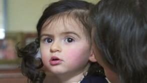 ابنتي المصابة بمرض نادر