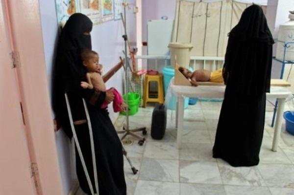 طفل يعاني من سوء تغذية يعالج في مستشفى في شمال غرب اليمن