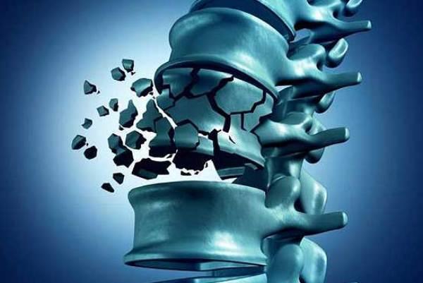 طرق ناجعة لاكتشاف حدوث هشاشة العظام في غضون أسابيع