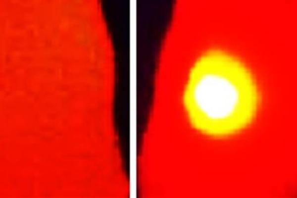 الصورة - على اليمين- لسرطان (بالأصفر) في فأر لم يعالج بكريات الميلانين