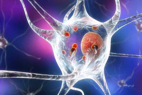 بروتين ألفا- ساينوكلين (الأحمر) متراكم في خلية عصبية - جامعة زيورخ