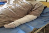 الكشف عن بتر ذراع عراقي معتقل نتيجة التعذيب