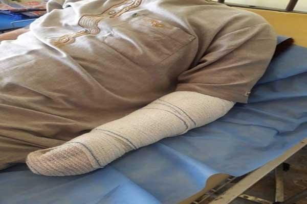 ضحية بتر ذراعه نتيجة التعذيب يرقد في المستشفى