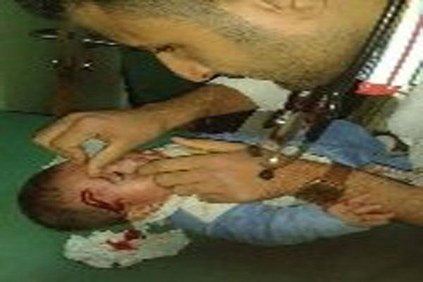 أطباء يعالجون مصابي قصف القوات العراقية للفلوجة