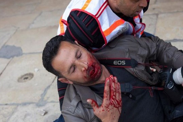 صحافي عراقي تعرض لاعتداء