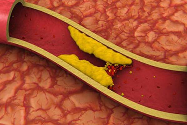 لقاح واعد ضد الجلطات القلبية