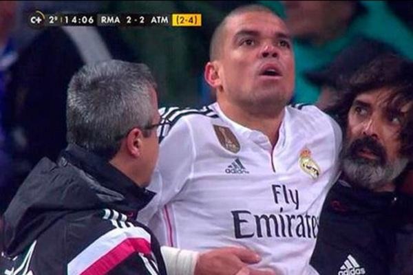 الإصابة تبعد بيبي عن ريال مدريد أكثر مما كان متوقعاً