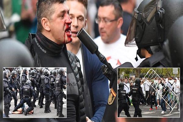 أسفرت أعمال الشغب والعنف التي تسبب فيها مشجعو نادي ليجيا وارسو البولندي في العاصمة الإسبانية في إصابة 12 شخصاً، بينهم ثلاثة شرطيين