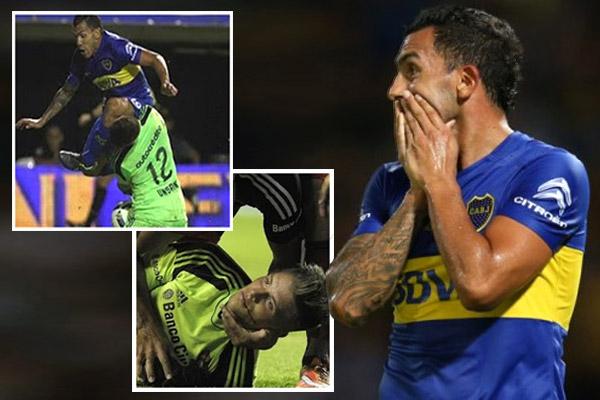 تيفيز يصيب حارس مرمى أرجنتيني بكسر في الفك
