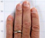 تلك العلامة بأصابع الرجال مؤشر على نجاتهم من خطر كورونا!